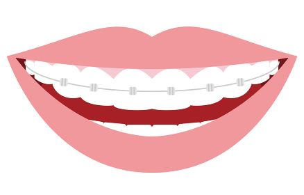 審美歯科、歯列矯正のイラスト:綺麗な歯並び