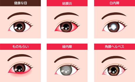 目・眼の病気 ベクターイラストセット (結膜炎・白内障・緑内障 etc.)