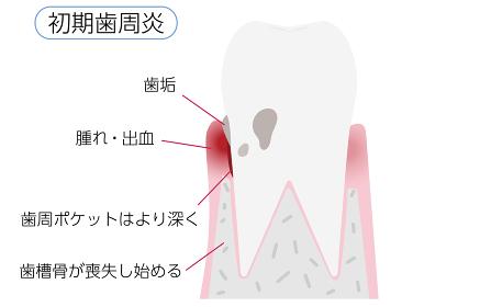歯周病の進行段階別イラスト:初期歯周炎