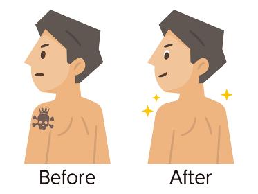 刺青・タトゥー除去のビフォーアフター