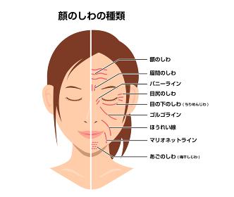 女性の顔のしわ ( 発生場所と名称 ) ベクターイラスト(しわのない顔との比較)