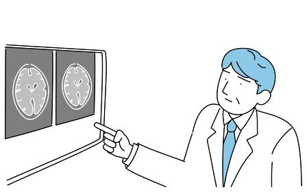 脳のMRI検査で撮った画像を指さす男性医師