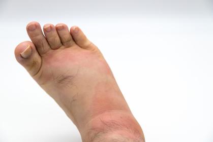 虫に刺されて腫れた足
