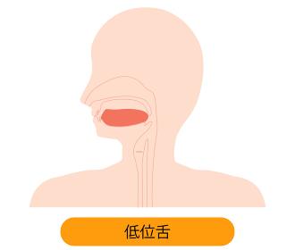 低位舌のイラスト