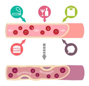 サラサラ血液の健康な血管が不健康要因により、ドロドロ血液になり動脈硬化を引き起こすイラスト(文字なし