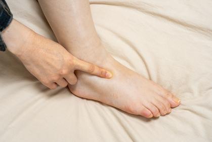 指でへこむほど浮腫んだ女性の足