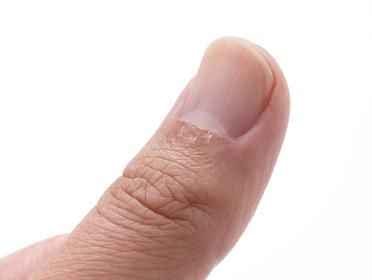 指のささくれ
