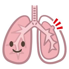 肺 病気 嚢胞