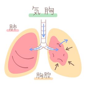 肺の図表(気胸)