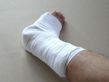 足首骨折のギブス
