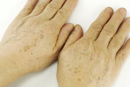 老人の手の甲 シミ