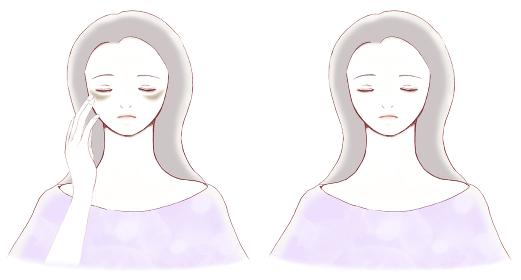 肝斑のある女性の顔とシミのない女性の顔 比較 ビフォーアフター