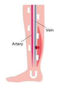 脚のむくみ(浮腫)の発生原因・過程 イラスト/ 通常の健康な脚