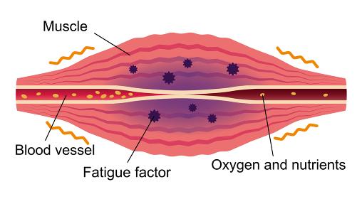 疲労物質が発生した筋肉 / 肩こり・凝り・痛みの発生イラスト