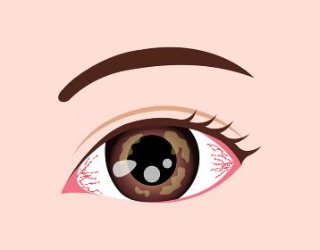 目・眼の病気 ベクターイラスト (角膜ヘルペス)