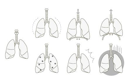 肺の状態 健康、症状のバリエーション モノクロ