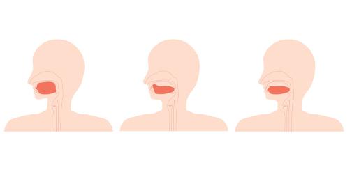 正しい舌の位置と低位舌のイラスト