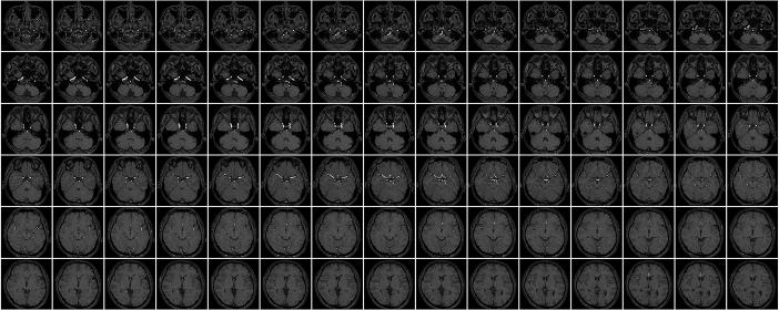 頭部MRIのサムネイル