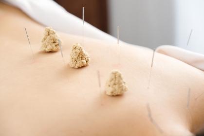 明るい鍼灸院で女性の背中に刺された針とお灸