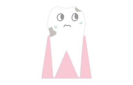虫歯の進行、歯の表面が溶け出す