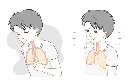 不健康な肺、健康な肺の男の子