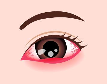 目・眼の病気 ベクターイラスト (ものもらい)
