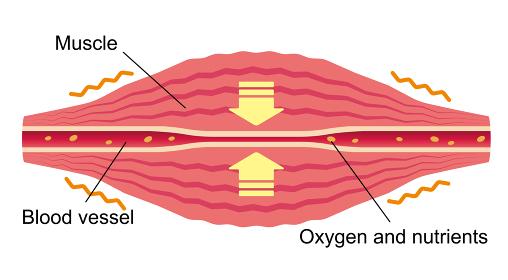 こわばった筋肉により圧迫された血管/ 肩こり・凝り・痛みの発生イラスト