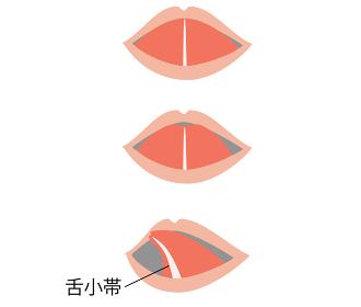 舌小帯短縮症で舌を伸ばすとハート型になるイラスト