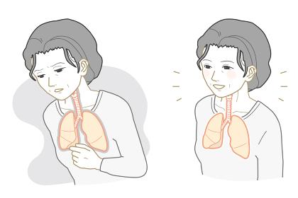 不健康な肺、健康な肺のおばあさん