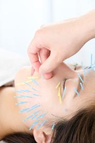 鍼灸院で顔に鍼を打たれる女性のアップ