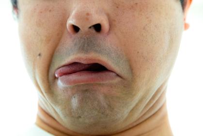 変な顔をする男性 殴られた表情