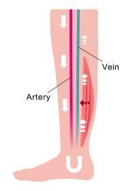 脚のむくみ(浮腫)の発生原因・過程 イラスト/ 筋肉の低下等による血流の悪化