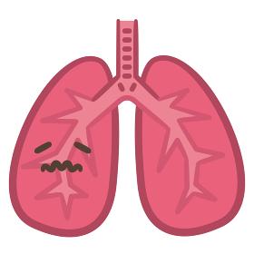 肺 病気 炎症